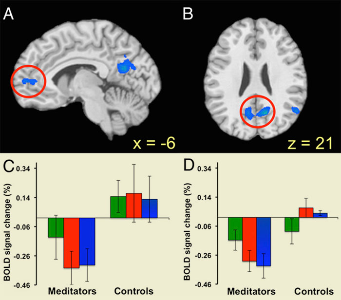Brain scans showing the contrast between experienced meditators and beginners